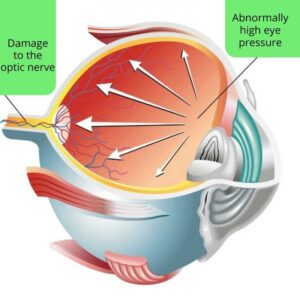 3D image of the eye showing how abnormally high eye pressure damages the optic nerve in glaucoma