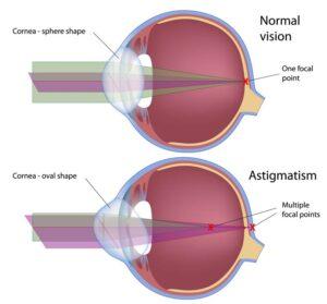 Normal eye versus eye with astigmatism