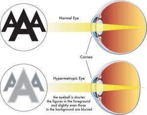 Normal eye versus eye with hyperopia