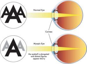 Normal eye versus eye with myopia